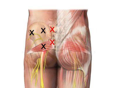 smärta höften strålar ner benet