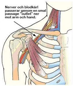 Thoracic Outlet Syndrom